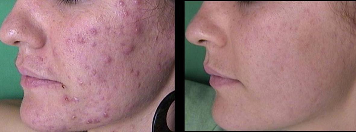 résultat acné avec ipulse