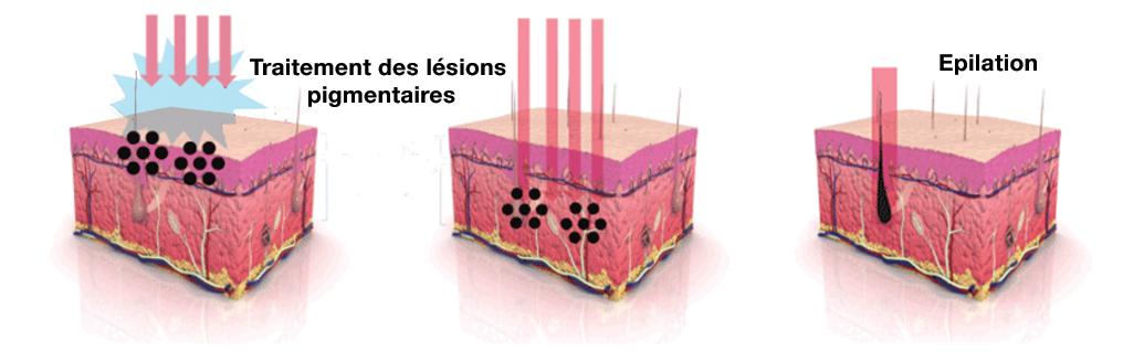 lesions pigmentaires - SANDRO DUAL